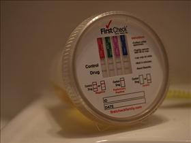 Urine Test for Pregnancy